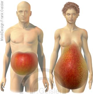 Adipositas, Apfel Apfelform beim Mann, Birne Birnenform der Frau