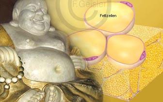 Übergewicht Adipositas Fettsucht mit Fettgewebe Fettzellen