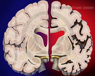 Morbus Alzheimer, Erkrankung an Demenz durch Abbau Nervengewebe im Gehirn