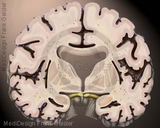 Alzheimer Krankheit Morbus Alzheimer, Demenzkrankheit Erkrankung an Demenz durch Abbau Gewebe im Gehirn