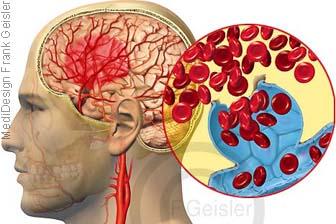 Aneurysmen, Aneurysma Hirnblutung Schlaganfall im Gehirn