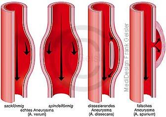 Aneurysma Aneurysmen, Aussackungen der Arterien
