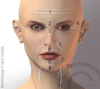Anti-Aging der Frau, Gesicht mit Faltenbildung Falten