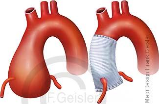 Aorta mit Aortenbulbus Aortenwurzelerweiterung und OP Hauptschlagader mit Aortenersatz