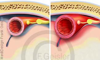 Gefäßerweiterung im Gehirn, Blutgefäß Arterie bei Migräne