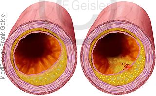 Atherosklerose Arteriosklerose mit stabile instabile Plaque in Blutgefäß