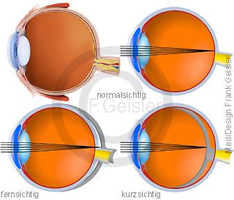 Sinnesorgan Sehorgan Auge, Augapfel bei Normalsichtigkeit, Fernsichtigkeit, Kurzsichtigkeit
