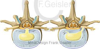Bandscheibe mit Bandscheibenprolaps Prolaps und Protrusion Bandscheibenprotrusion
