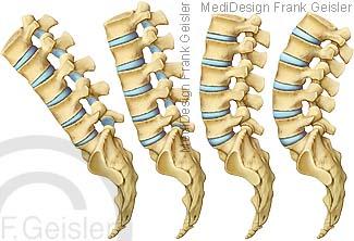 Bewegung Wirbel der Wirbelsäule, Lendenwirbelsäule mit Wirbel Lendenwirbel