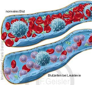 Blutgefäß mit Blutzellen im Blut bei Blutkrebs Leukämie