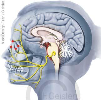 Punkte zum Spritzen von Botox Botulinumtoxin in Nerven