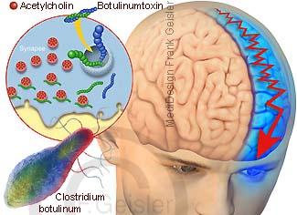 Botulinumtoxin Botox gegen Migräne Kopfschmerzen