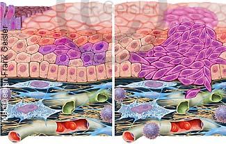Histologie Bronchialkarzinom Lungenkrebs Lungenkarzinom der Lunge