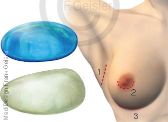 Brustvergrößerung weibliche Brust durch Brustimplantate mit Schnittmethoden Brust-OP