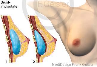 Brustvergrößerung der Brust mit Brustimplantate in der Schönheitschirurgie