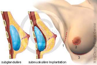 Vergrößerung der Brust, Brustvergrößerungen mit Implantate Brustimplantate in plastische ästhetische Chirurgie