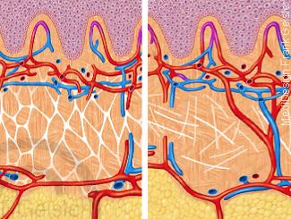 Epidermis mit Bindegewebe Fettgewebe bei Cellulite Orangenhaut der Haut