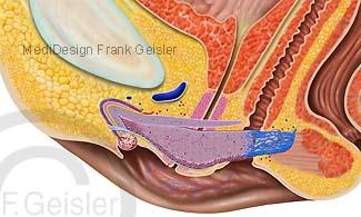 Organe Geschlechtsorgane Frau, Anatomie Clitoris Klitoris Kitzler