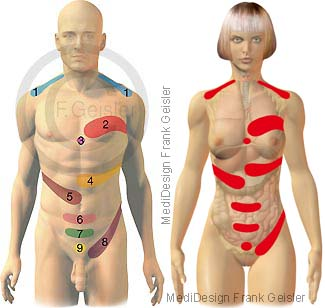 Dermatome, Head-Zonen Schmerzonen Organe Mann und Frau