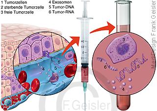 Diagnostik Krebs, Tumorzellen im Blut