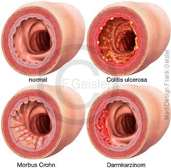 Dickdarm Darmerkrankungen Colitis ulcerosa Morbus Crohn und Darmkrebs