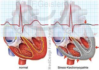 EKG Herz bei Stress-Kardiomyopathie, Gebrochenes-Herz-Syndrom, Tako-Tsubo-Kardiomyopathie