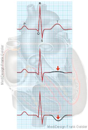 Herz Elektrokardiogramm EKG bei Tako-Tsubo-Kardiomyopathie, Herzerkrankung durch Stress