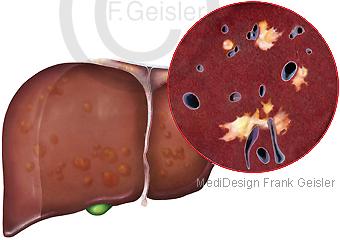 Erkrankung Leber Hepar, Fibrose Leberfibrose liver fibrosis