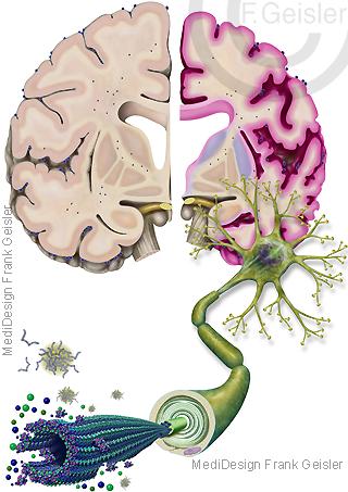 Erkrankung ZNS, Demenz durch Alzheimer Krankheit Morbus Alzheimer