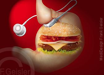 Falsche Ernährung Adiposita Fettsucht, Magen mit Magenband und Burger