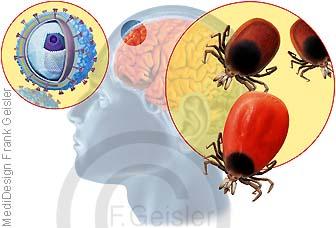 Frühsommer-Meningoenzephalitis der Hirnhäute durch FSME-Viren