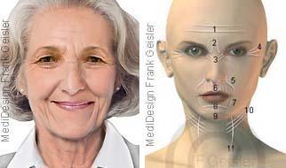 Falten Faltenbildung in Gesicht und Hals der Frau