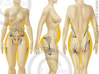 Fettabsaugung Liposuktion Fett der Frau bei Cellulite