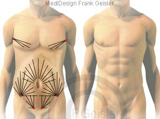 Fettabsaugung Liposuktion Fett Körperfett beim Mann