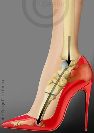 Belastung Knochen Fußknochen Fuß beim Tragen von High-Heels