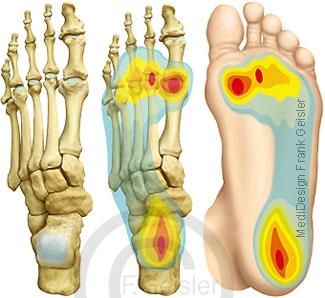 Fuß Fußknochen Fußskelett mit Fußsohle, Belastung Fuß