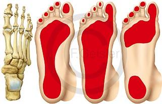 Fuß mit Knochen Skelett, Fußsohle Plattfuß und Hohlfuß