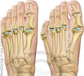 Fuß mit Fehlstellung Fußfehlstellung Spreizfuß Pes transversoplanus