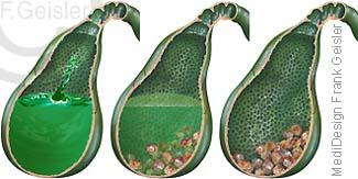 Gallenblase mit Galle, Entstehung Gallensteine in Gallenflüssigkeit