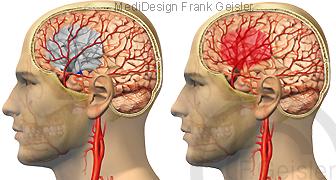 Gehirn mit Apoplexie Schlaganfall Gehirnschlag