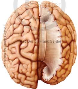 Anatomie Hirn Gehirn, Gehirnbalken mit Nervenfasern