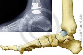 Gelenk Sprunggelenk mit Arthrose, Prothese Gelenkprothese Sprunggelenkprothese