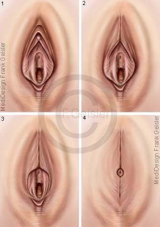 Genitalverstümmelung Genitalbeschneidung Genitalien der Frau