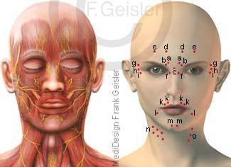 Gesicht mit Muskeln Nerven, Punkte Injektion Botulinumtoxin Botox