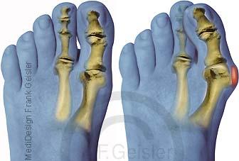 Hallux valgus, schmerzhaftes Überbein, Schiefzehe am Fuß