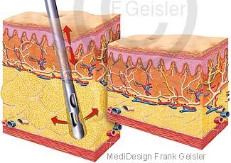 Fettabsaugung Liposuktion Fett aus Fettgewebe der Haut