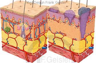 Haut Derma Cutis mit Hautschichten, Krebs Hautkrebs malignes Melanom
