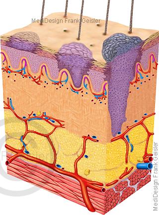 Haut mit Stadien Hautkrebs, Krebs Malignes Melanom
