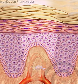 Haut Narbenbildung Vernarbung Narbe