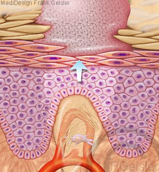 Haut Narbenbildung Vernarbung einer Wunde